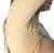 Bust and arms girdle brachioplasty liposuction